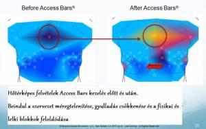 access_bars_hatasa_hoterkepes_felvetel.jpg